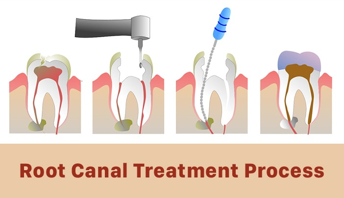 Hialeah Dentistry - Root Canal Treatment