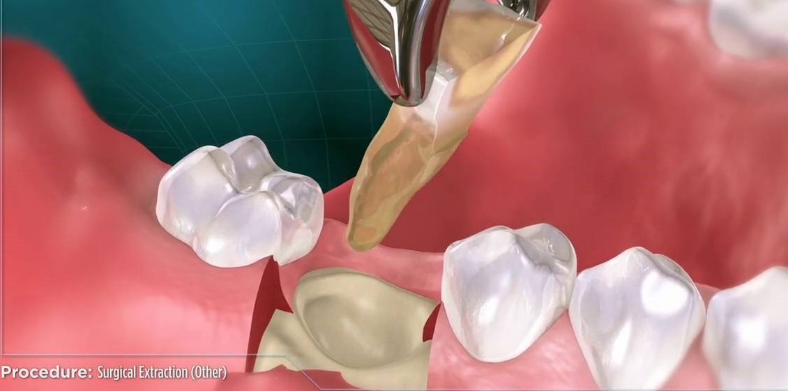 surgical extractions